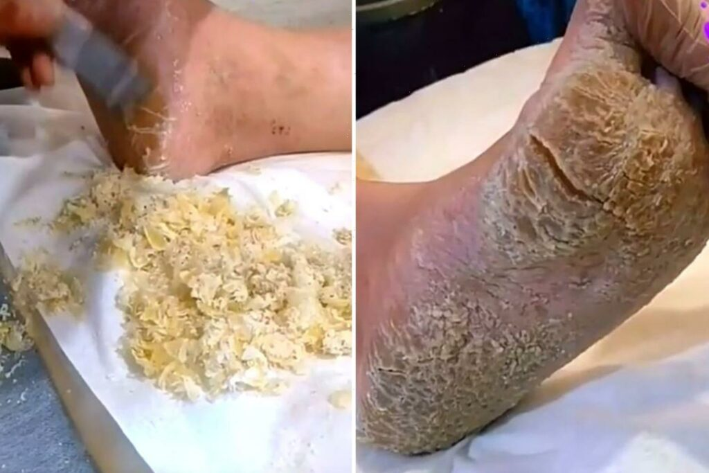 Description: Stomach-churning moment beautician tackles MOUNTAIN of dry skin on client's  feet - and it's likened to 'parmesan cheese' | thejjReport