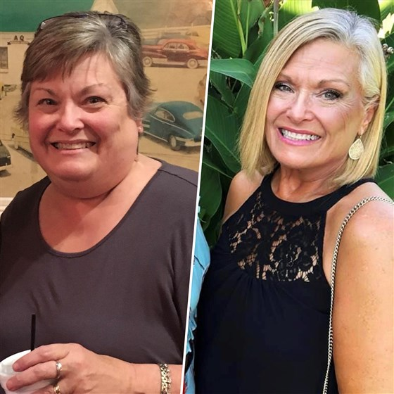 Description: Woman loses 100 pounds and inspires her mom to do the same